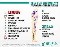 dvt leg pain relief