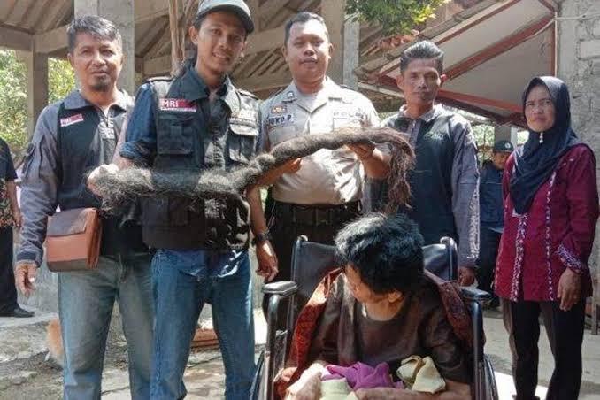 Ardian Kurniawan Santosa (bertopi) memegang rambut gimbal Mbah Iyah.