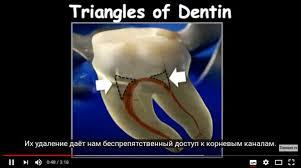 Стоматологический портал Стоманет ру Страница из Новости   Треугольники дентина и идеальный доступ к каналу переднего зуба видео ·