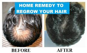 Home Remedy To Regrow Your Hair Ii