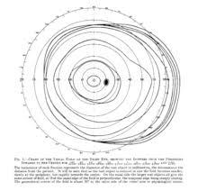 Visual Field Chart Interpretation Visual Field Wikipedia