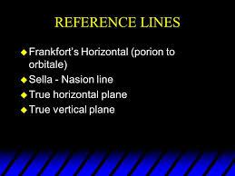 Cephalometric Analysis Dent 657. Analysis Utilizing The ...