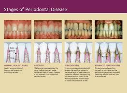 Dr. James J Herget - Dentist Mayville WI   Periodontal disease, Gum  disease, Periodontitis