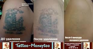 удаление татуажа и татуировок лазером в донецке тату салон
