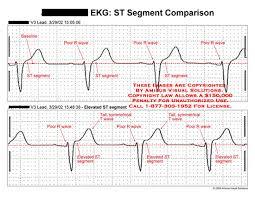 Amicus Illustration Of Amicus Chart Ekg Ecg St Segment