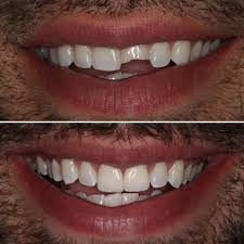 Image result for cosmetic dentistry