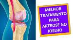 artrose ombro tratamento