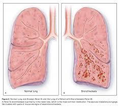 Bronchiectasis Physiopedia