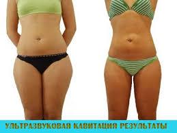 NovaЯ студия красоты — Программа похудения «Без боли»!