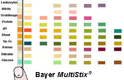 Multistix Color Chart Medical Technology Urinalysis