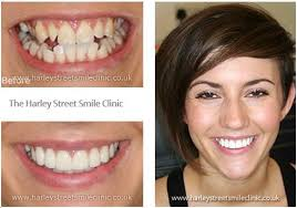 Our Smiles Harley Street Smile Clinic