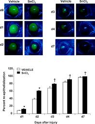 heme oxygenase 1 induction attenuates corneal inflammation and  view originaldownload slide