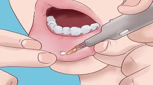 unresponsive mouth ulcer can be cancer