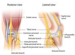 chronic sciatic pain management