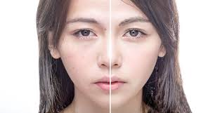 Acne treatment for asian