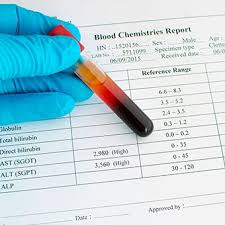 Normal Sgpt Level Chart Liver Blood Tests Abnormal Values High Low Normal Explained