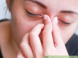 3 Ways to Get Rid of Puffy Eyes from Crying - wikiHow