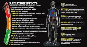 Radiation Dose Chart Radiation Exposure Radiation Therapy
