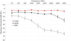 Representation Of Speech In Noise In The Aging Midbrain And