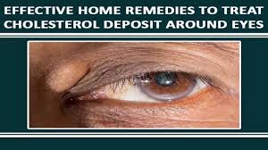 How To Treat Cholesterol Deposits Around The Eyes Naturally - YouTube