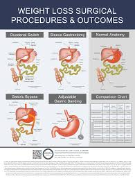 Compare Procedures Dssurgery