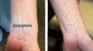 Odstranění Tetování Mýty A Fámy Laser Centrum Praha Esthé
