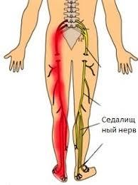 Chiropractie voor Ischias - embody health Chiropractie