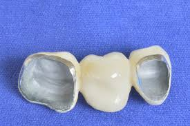 """Modern Dental   High Noble PFM   Modern Dental additionally Williams Sound PFM PRO Rechargeable Personal FM PFM PRO RCH B H additionally PFM Premiata Forneria Marconi   Official   Home   Facebook furthermore File Logo PFM     Wikimedia  mons as well All Zirconia Crown vs PFM   vutooth together with PFM   The Western  original mix    YouTube furthermore Santa Cruz Pfm Skeleton Coach Jacket   Active Ride Shop furthermore √ Da riscoprire  la storia di """"Chocolate kings  della PFM   News together with How to prep a tooth for a PFM crown   California Dental Arts in addition PFM a Roma il 4 Aprile 2017   Relics Controsuoni besides Dickerman Dental Prosthetics   PFM   Dickerman Dental Prosthetics. on pfm"""