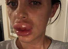 how long does swelling last after lip