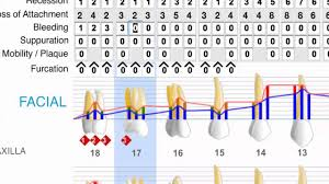 Dental And Periodontal Charting Praktika Online Dental Software New Periodontal Charting