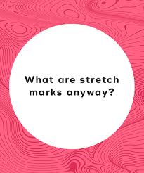 what are stretch marks anyway
