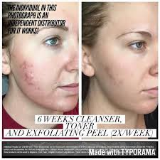 it works exfoliating peel before and after guest post it works a big giveaway