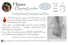 Hijama Cupping Points Chart Hijama Feet Points Hijama Cupping London