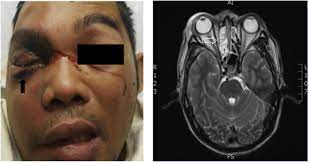 Mucormycosis: More Than Meets the Eye! - The American Journal of Medicine