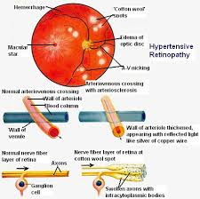 collection copper wiring retinopathy causes pictures wire grading of hypertensive retinopathy hypertensive retinopathy was grading of hypertensive retinopathy hypertensive retinopathy was