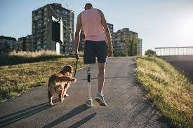 Amputee Walking A Dog During Recovery Stock Photo - Download Image Now -  iStock