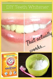 diy dentures kit use this teeth whitener to shine up your all natural recipe is emergency diy dentures kit