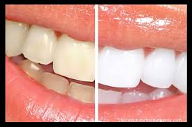 There are 4 main ways to whiten coffee stained teeth. Coffee Stained Teeth 5 Ways To Save Your Teeth From Coffee Stains