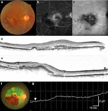 Age Related Macular Degeneration Eye Chart Macular Function In An Eye With Neovascular Age Related