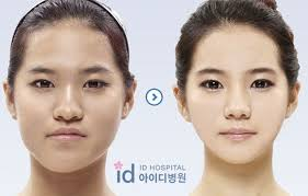 before and after photos of korean plastic surgery part 2 62 pics picture 5 izismile