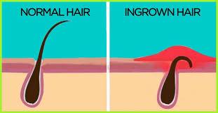 how to get rid of ingrown hair face