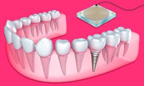 New Sensor Integrated Within Dental Implants Monitors Bone Health - IEEE  Spectrum