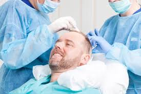 Image result for Hair Transplant Clinic