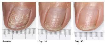 the dyad fungal nail laser