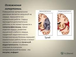 Презентация на тему Гипертоническая болезнь это заболевание  7 Осложнения гипертонии