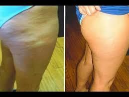 Massagegerät - Einsetzbar gegen, cellulite - Po, Beine
