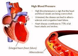 Blood Pressure Diagram High Blood Pressure Anatomy System Human Body Anatomy Diagram