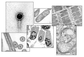 Tem Microscope Transmission Electron Microscopy University Of Leicester