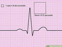 How To Read Cardiogram Chart How To Read An Ekg An Interpretation Guide With Sample