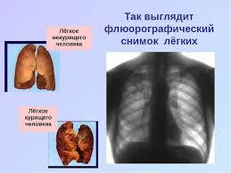Презентация по окружающему миру на тему Дыхательная система  Так выглядит флюорографический снимок лёгких Лёгкое некурящего человека Лёгко